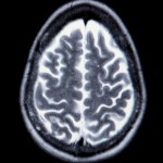 An MRI can guide the neurosurgeon's path